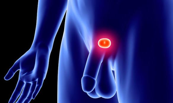 Cos'è il cancro alla prostata?