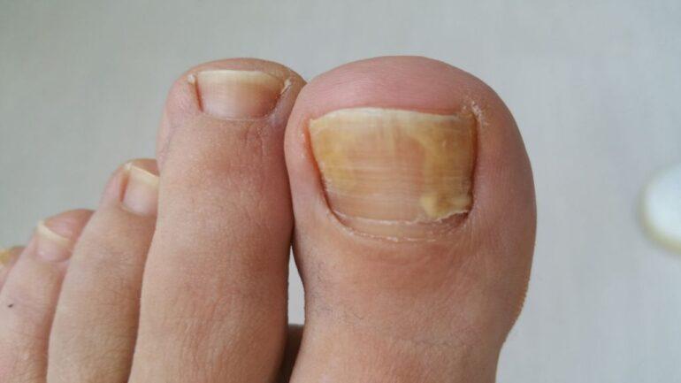 Cos'è l'onicomicosi? Quali sono i sintomi?